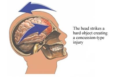 Concussion A concussion is a traumatic brain injury that interferes with normal brain function An athlete does not have to lose consciousness to have suffered a concussion COMMON SYMPTOMS OF A