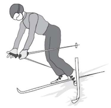 INTRODUCTION The most common type of fall among knee injured skiers seems a forward fall with body