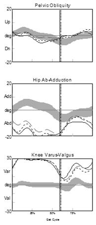 Left (dashed) Blount s - Knee Varus C89440 Knee Varus Sagittal Plane Terminology Impairment fixed knee varus deformity increased knee varus Secondary deviation hip