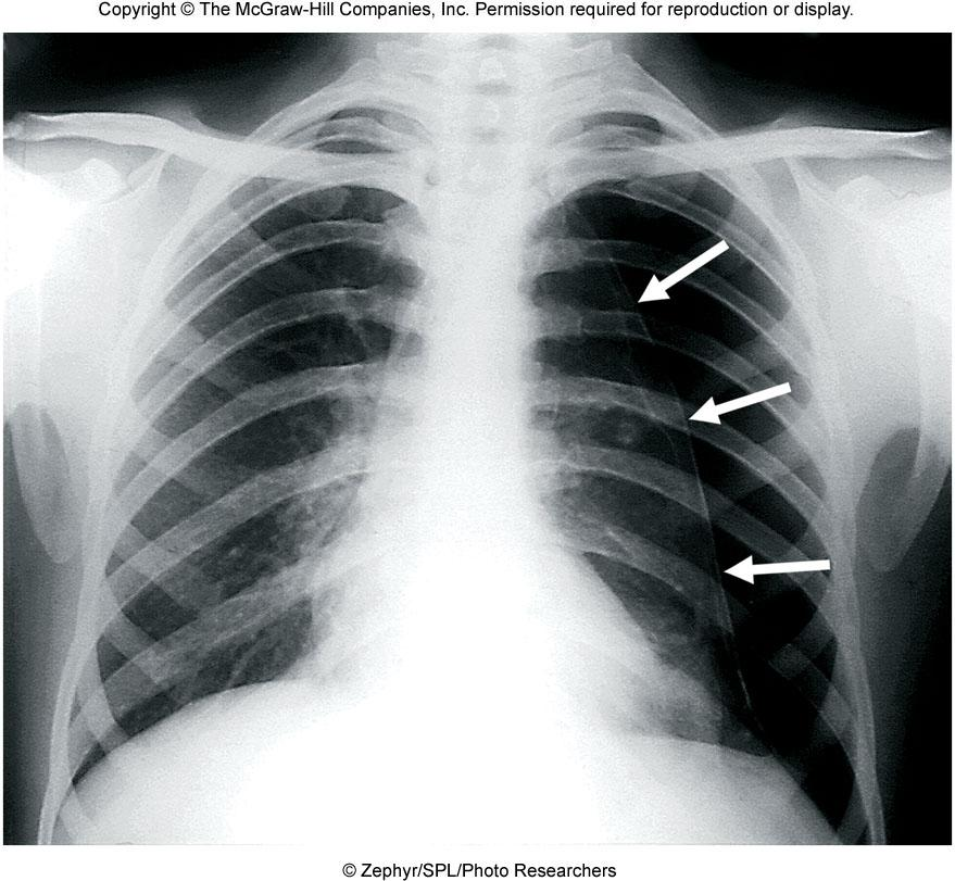 Pneumothorax A pierce in the chest wall allows atmospheric air to rush in causing P ip to go from -4 mmhg to