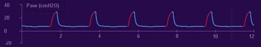 Pressure Waveform Area under the curve = mean airway pressure Inspiration(red) Expiration(blue)