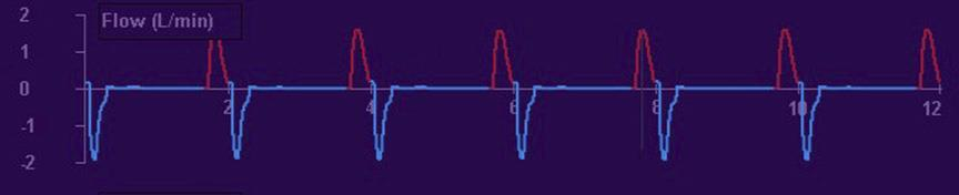 Flow Waveform Distinguishing Breath Types Sinusoidal