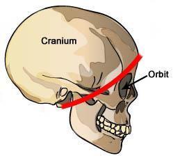 This part of the cranium is roughly behind the red line in the diagram at right.