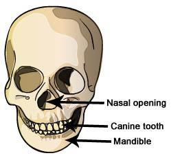 (Note: You will not be able to do this measurement on incomplete skulls.