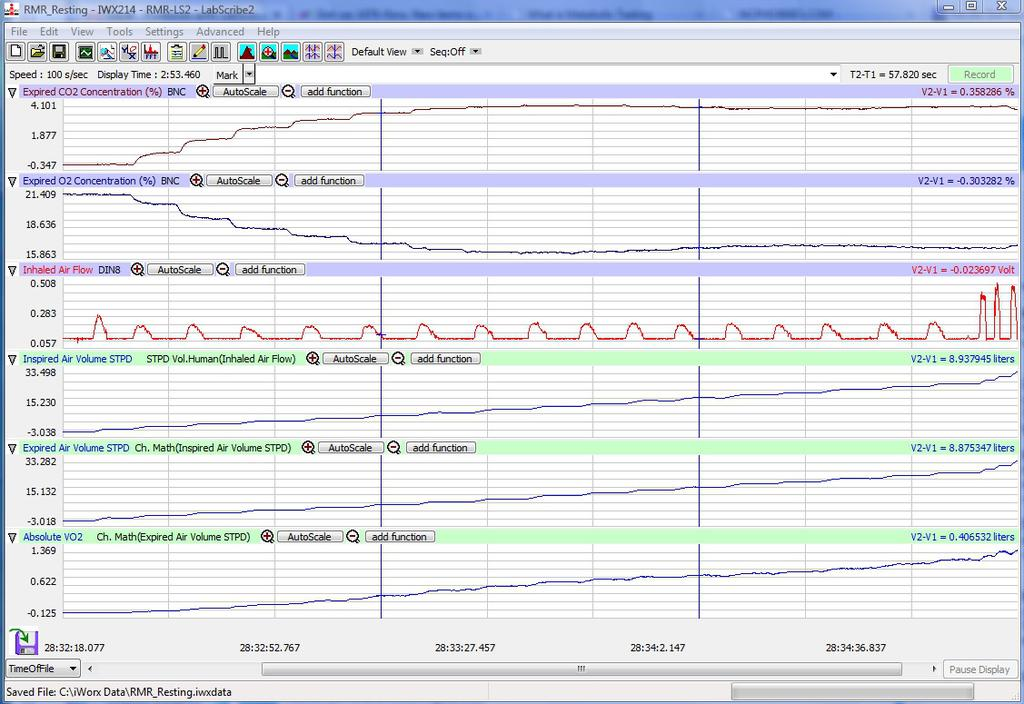 11. Select Save As in the File menu, type a name for the file. Choose a destination on the computer in which to save the file, like your lab group folder). Designate the file type as *.iwxdata.