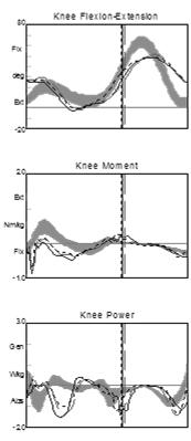 excessive equinus in swing Trim line posterior to medial and lateral malleolus Thinner ankle coverage that allows sagittal plane motion in dorsiflexion during weight bearing Support strapping at