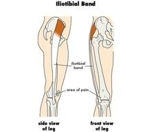 Signs and Symptoms of Runner's Knee: Pain almost exclusively along the outer portion of the knee (the lower part of the the IT band inserts on the lateral tibial condyle) Pain may be worse with