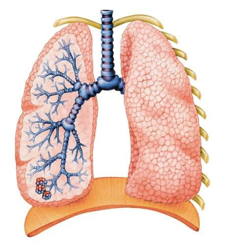 travel to your lungs Chemicals can Build up in your lungs and damage them or