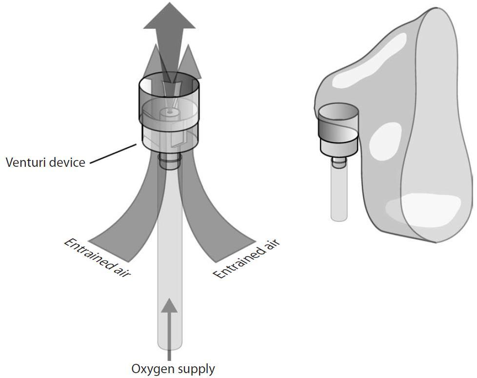 Venturi Mechanism If oxygen is supplied to the venturi device at the correct flow rate, air will