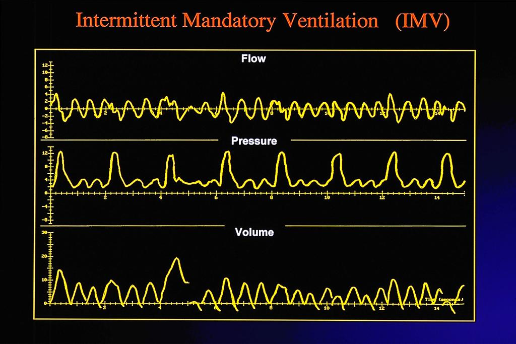 "Intermi^ent mandatory ven3la3on: IMV/ SIMV Goal:"" Support EELV and improve V e in spontaneously breathing infant requiring intubation"" Eliminate breath-breath volume variation, cerebral blood flow"