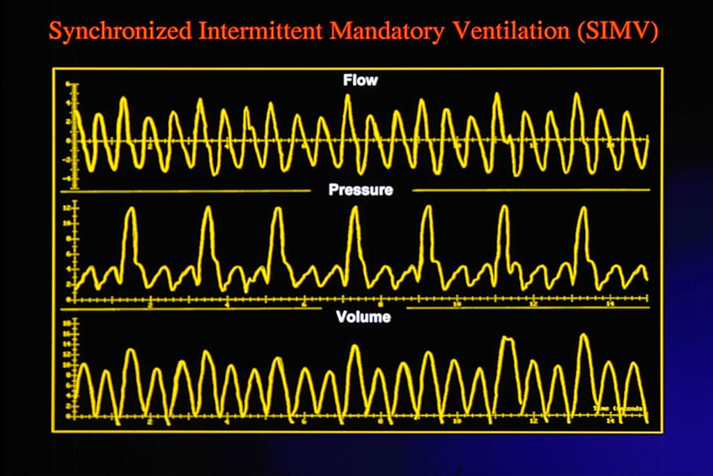 "intubation"" Extubated infants with persistent distress"" Intermi^ent Mandatory Ven3la3on: IMV/ SIMV Setup:"" ET tube interface"" Variables:"" Rate- range 15-60 bpm; always synchronized"" Volume- target"