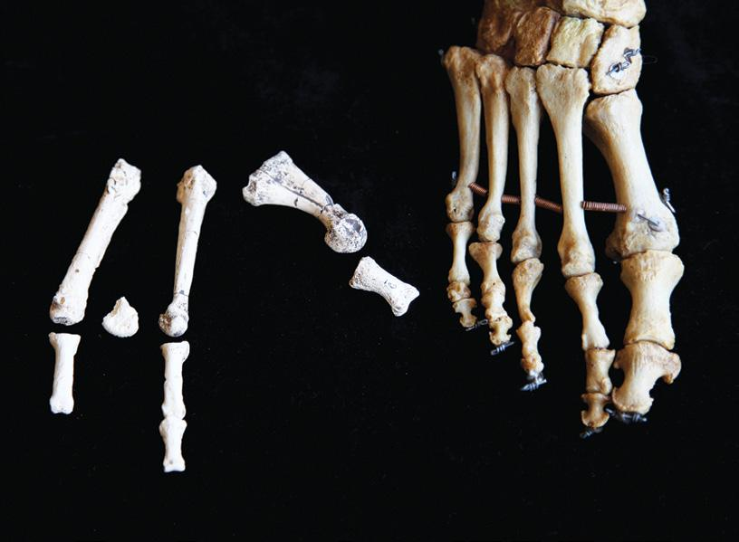 A FOOT APART: Partial fossil foot from the site of Burtele in Ethiopia (left) had a divergent big toe and other traits that distinguish it from the feet of modern humans (right) and their ancestors,