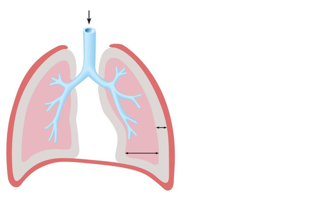Atmospheric pressure Thoracic wall Parietal pleura Visceral pleura Pleural cavity Transpulmonary pressure 760 mm Hg 756 mm Hg =