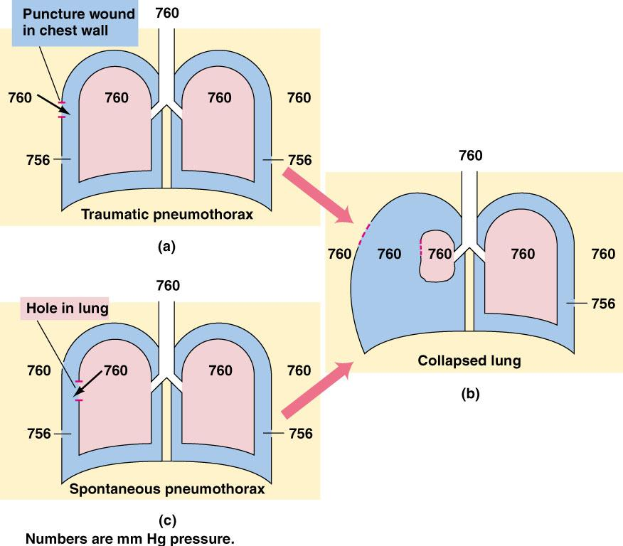 Intrapleural Pressure and Pneumothorax Intrapleural pressure maintains the alveoli