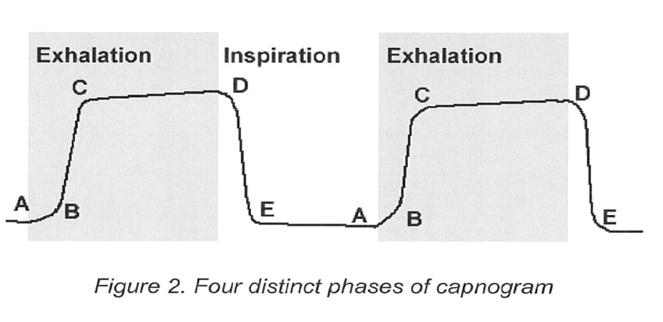 Phases of the Capnogram A-B: Exhalation of CO2 free gas